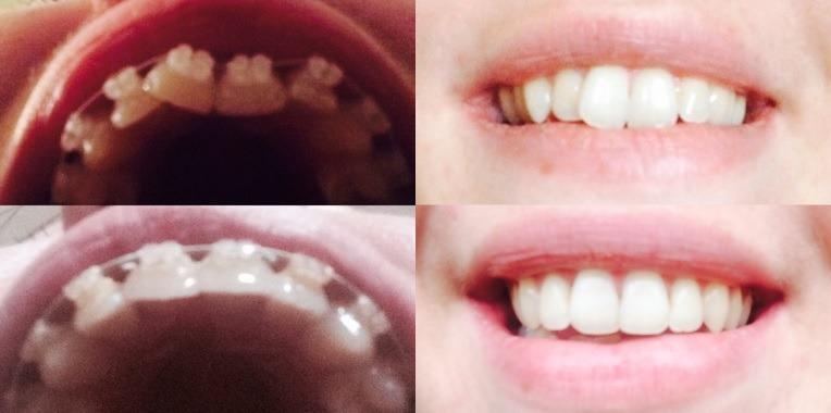 teeth straightening braces
